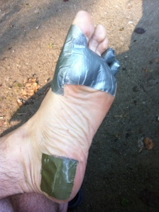 Typical foot prep